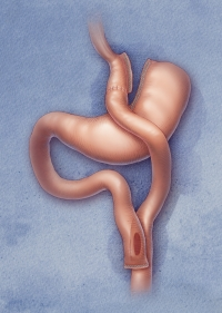 RNY Gastric Bypass